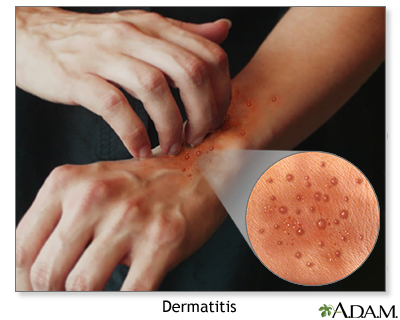 SCARY HANDS (1) – Eczema hand conditions can be annoying ...